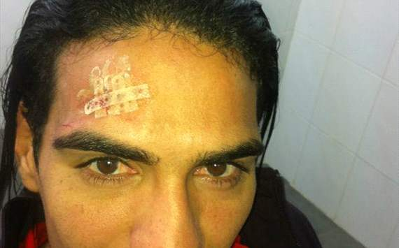 Falcao posts head injury on Twitter after collision with Soldado