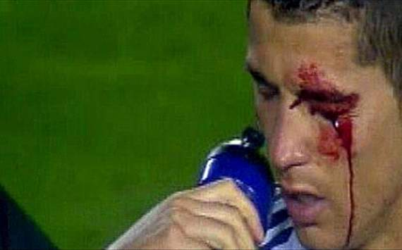 Cristiano Ronaldo- with a bloody face/ levante-real madrid