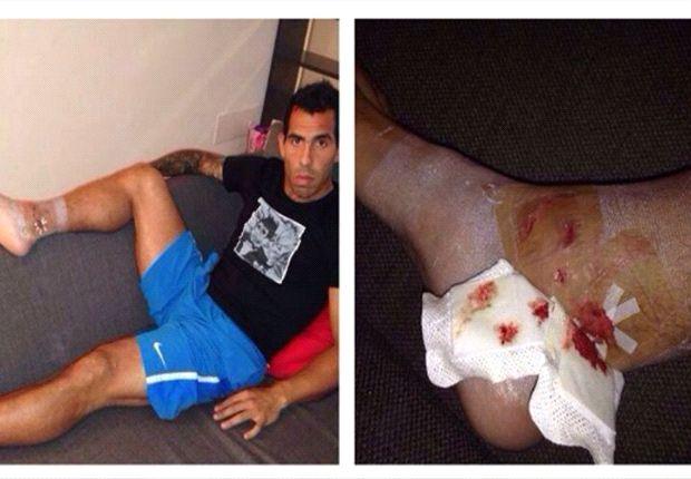 Tevez bức xúc vì suýt vỡ mắt cá chân
